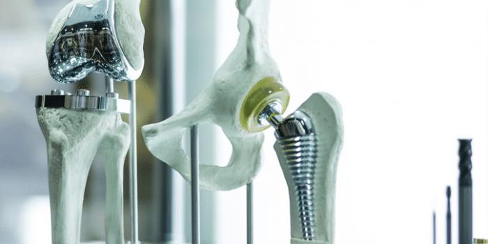 Digestão assistida por microondas de ligas ortopédicas de Ti